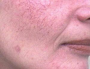 Rimedi di gente allatto di trattamento di varicosity