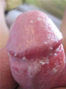 Olio un fungo su risposte di unghie