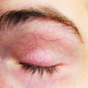 Varicosity delle estremità più basse e le vene gemorroidalny