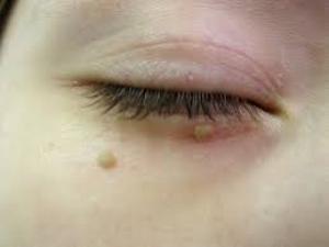 Eruzioni di posti sul trattamento di faccia